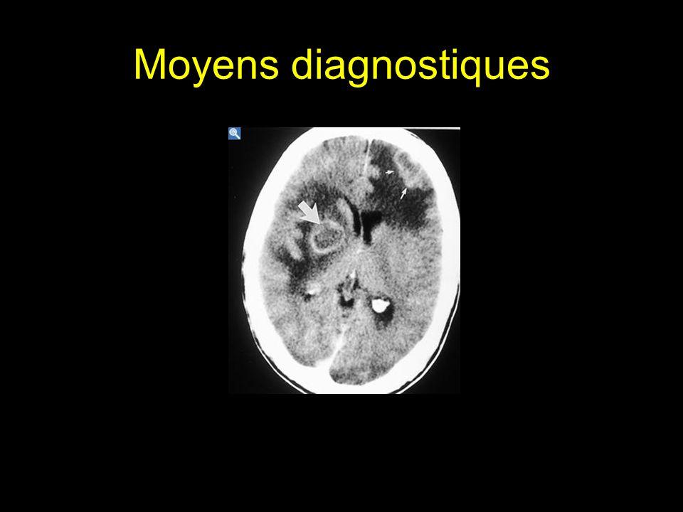 Moyens diagnostiques