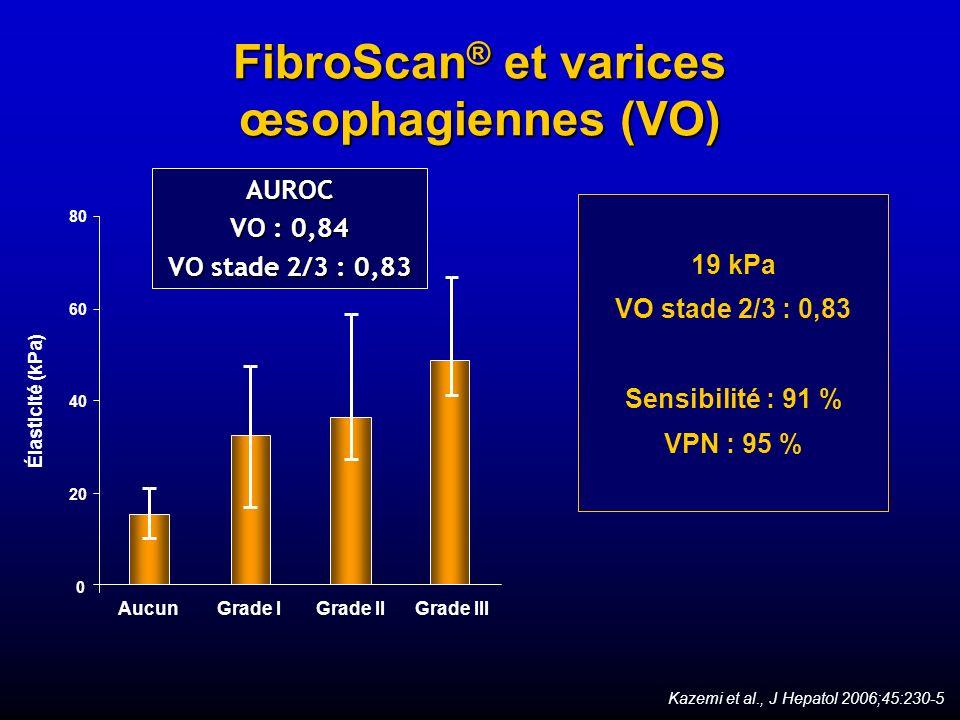 FibroScan® et varices œsophagiennes (VO)