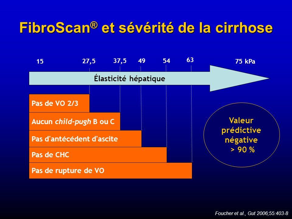 FibroScan® et sévérité de la cirrhose