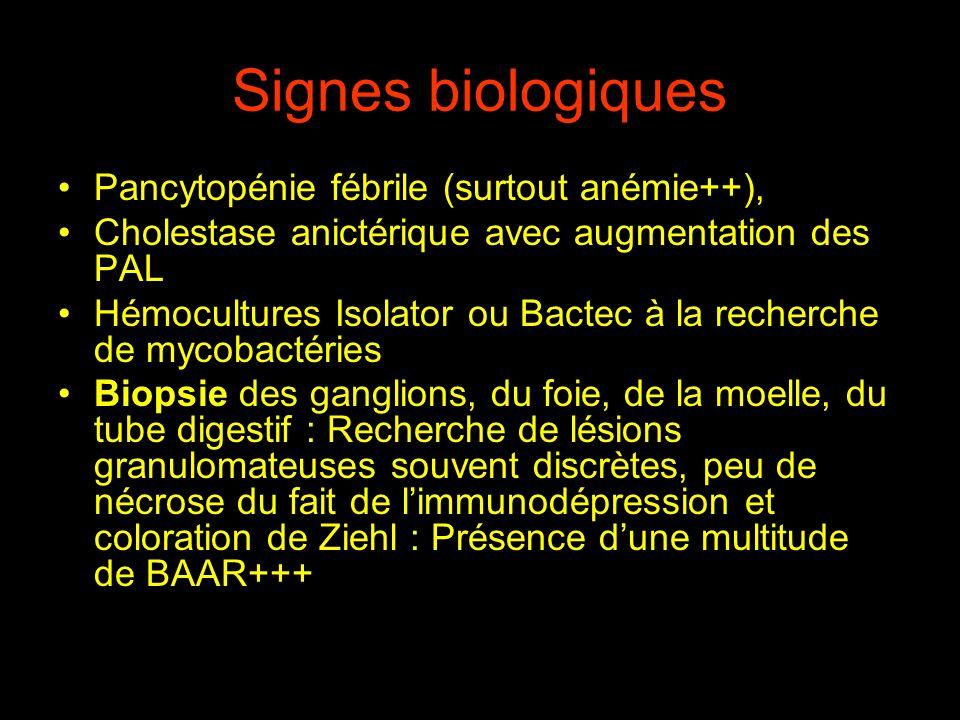 Signes biologiques Pancytopénie fébrile (surtout anémie++),