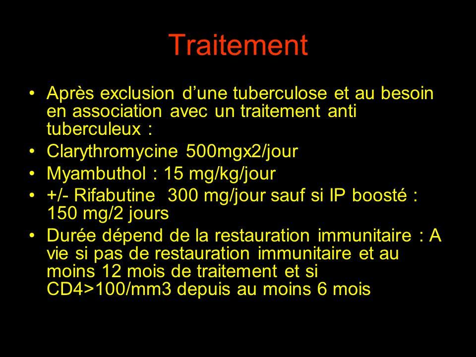 Traitement Après exclusion d'une tuberculose et au besoin en association avec un traitement anti tuberculeux :