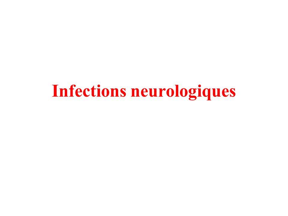 Infections neurologiques