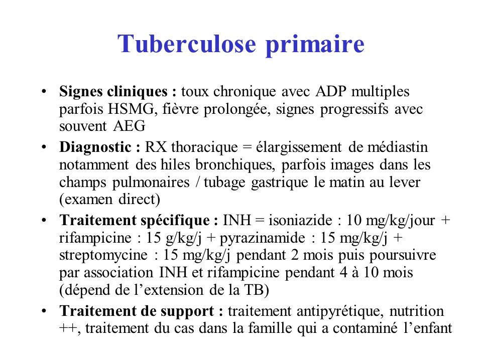 Tuberculose primaire Signes cliniques : toux chronique avec ADP multiples parfois HSMG, fièvre prolongée, signes progressifs avec souvent AEG.