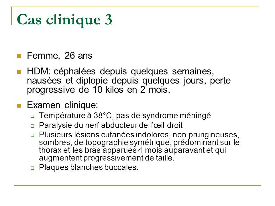 Cas clinique 3 Femme, 26 ans.