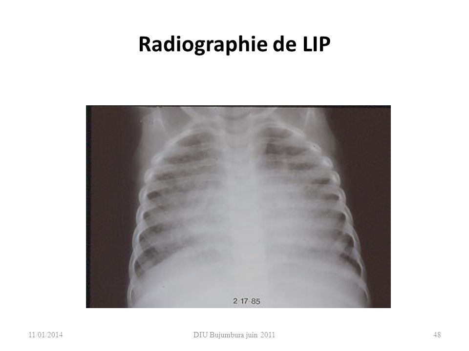 Radiographie de LIP 26/03/2017 DIU Bujumbura juin 2011