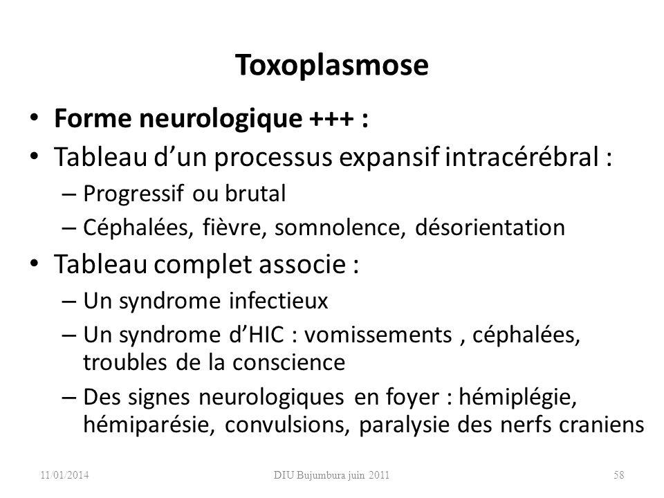 Toxoplasmose Forme neurologique +++ :