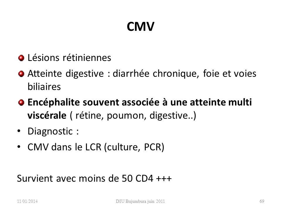 CMV Lésions rétiniennes