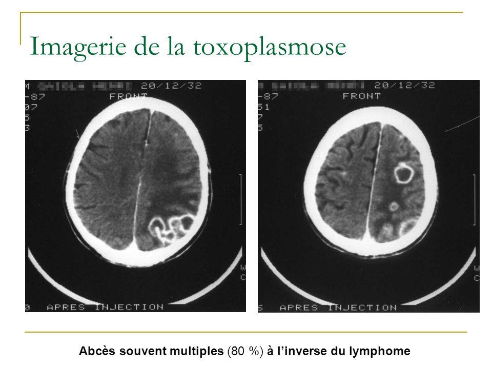 Imagerie de la toxoplasmose