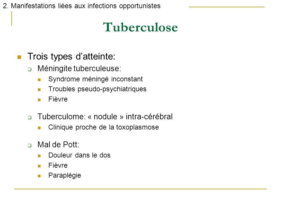 Tuberculose Trois types d'atteinte: Méningite tuberculeuse: