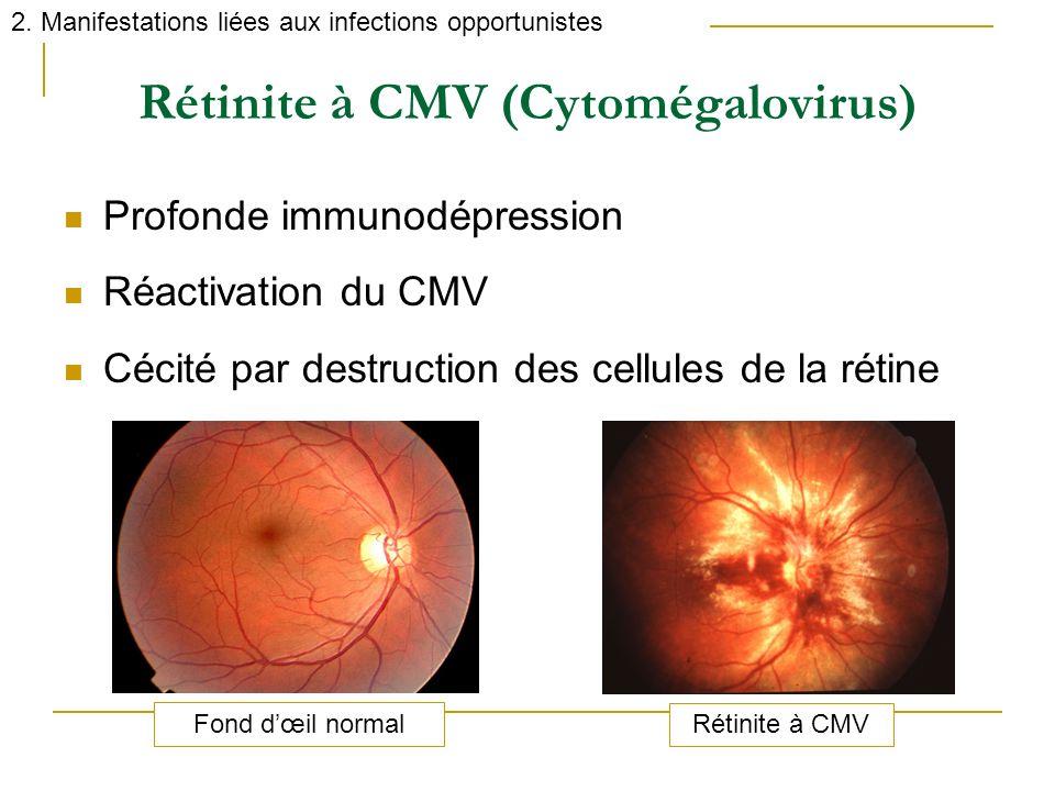 Rétinite à CMV (Cytomégalovirus)