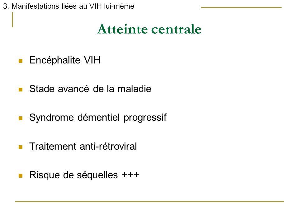 Atteinte centrale Encéphalite VIH Stade avancé de la maladie