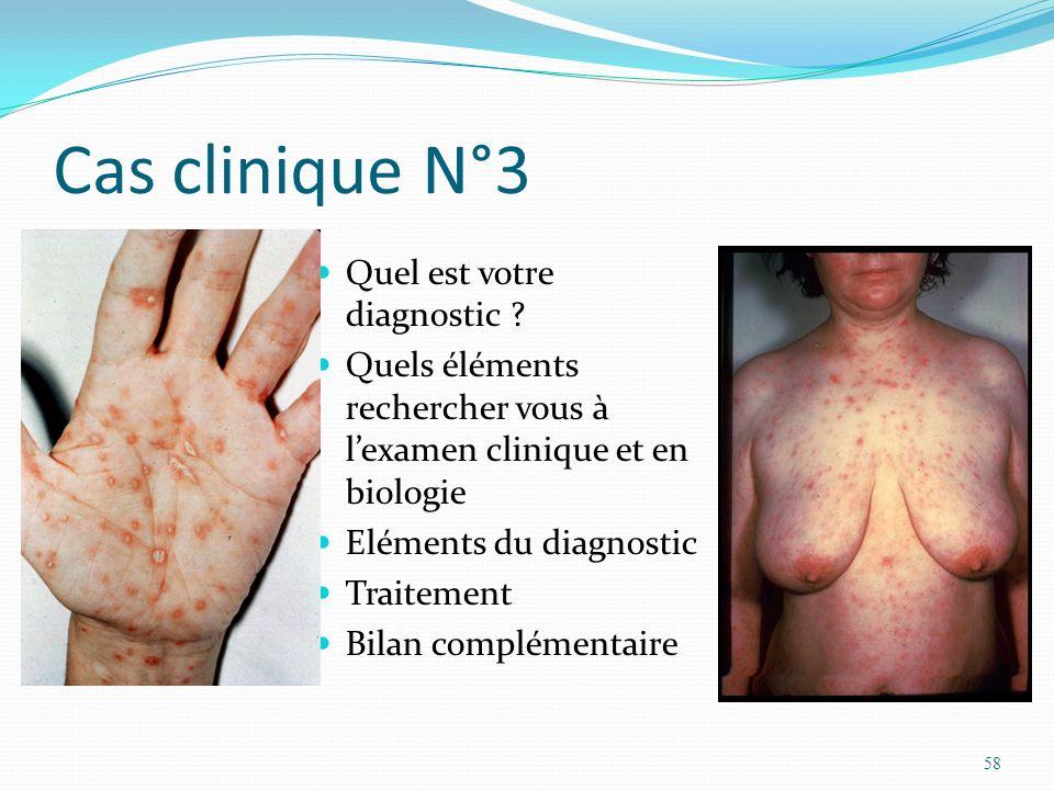 Cas clinique N°3 Quel est votre diagnostic