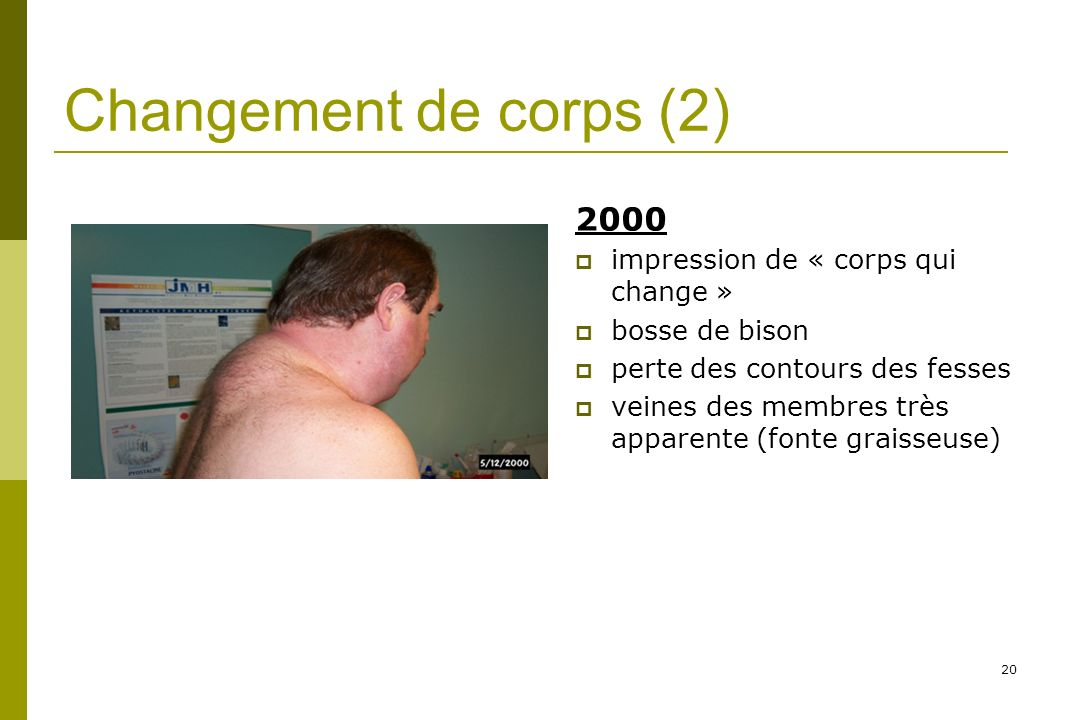 Changement de corps (2) 2000 impression de « corps qui change »