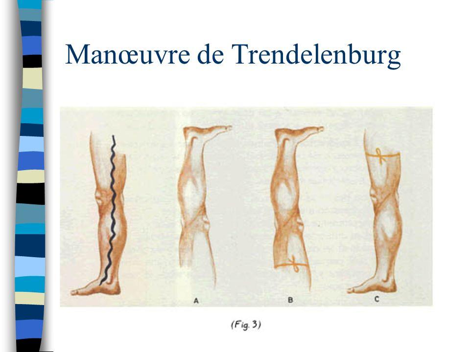 Manœuvre de Trendelenburg