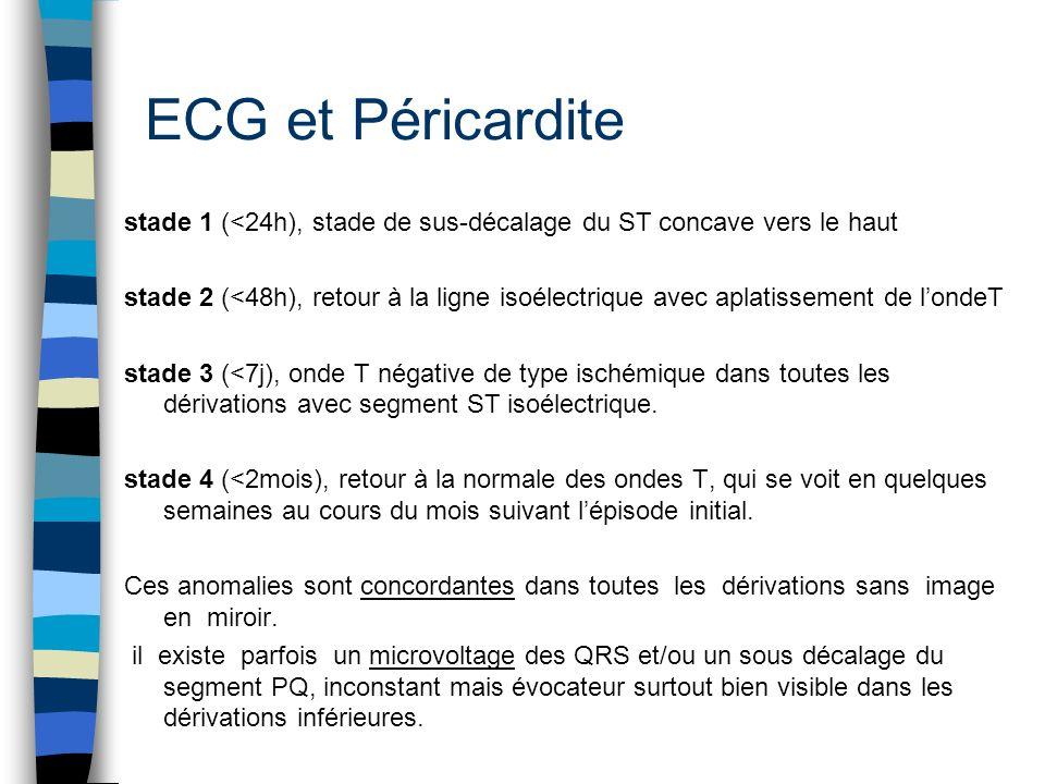ECG et Péricardite stade 1 (<24h), stade de sus-décalage du ST concave vers le haut.