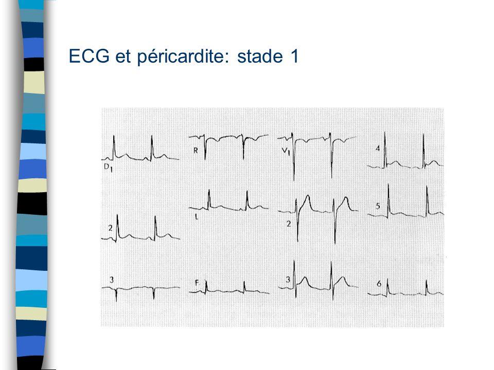 ECG et péricardite: stade 1