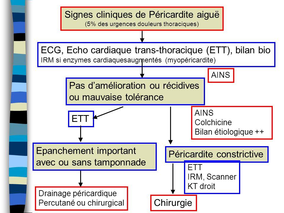 Signes cliniques de Péricardite aiguë