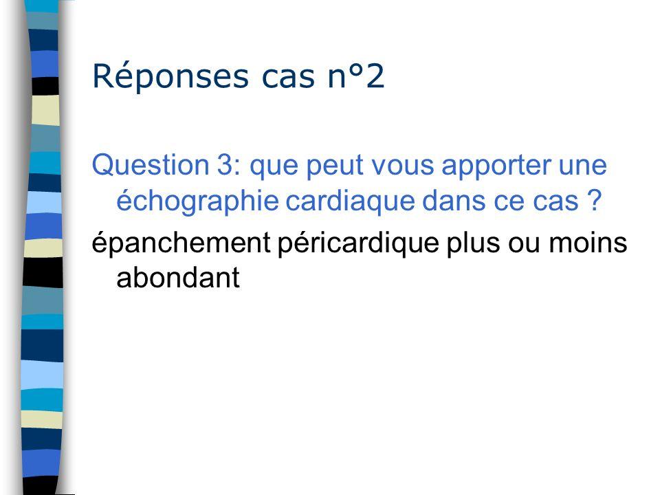 Réponses cas n°2 Question 3: que peut vous apporter une échographie cardiaque dans ce cas .