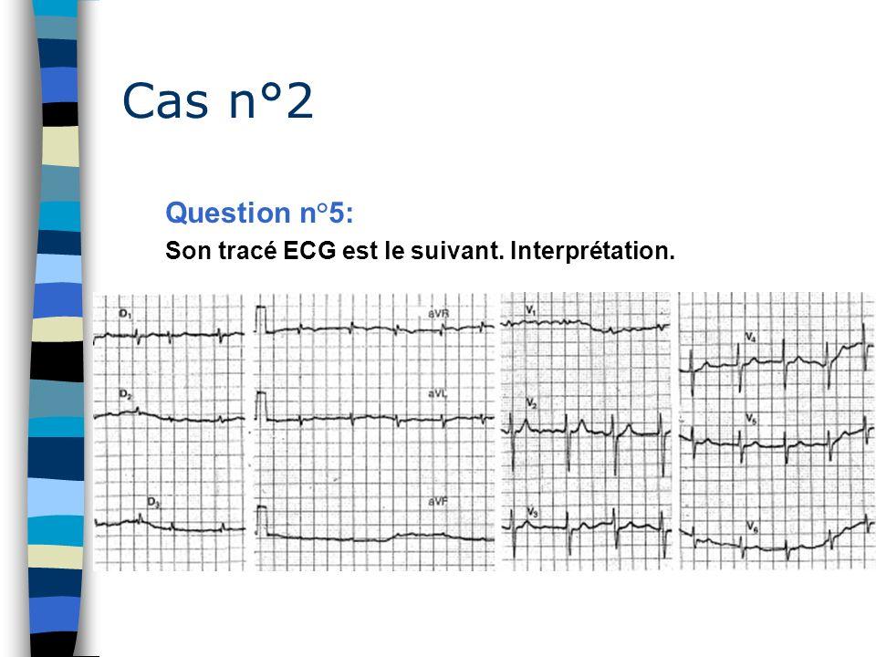 Cas n°2 Question n°5: Son tracé ECG est le suivant. Interprétation.