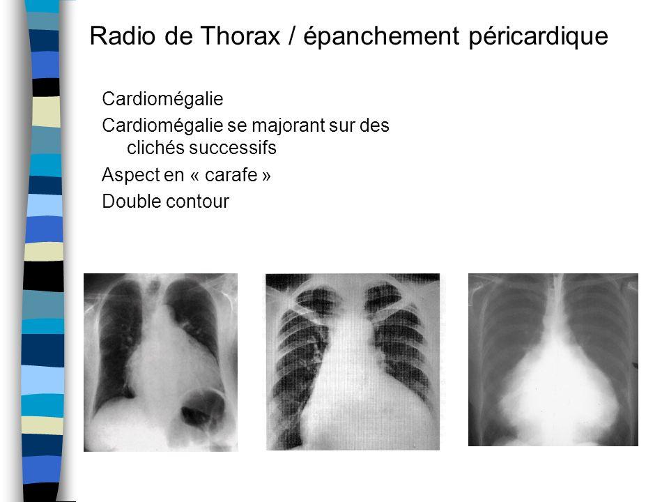 Radio de Thorax / épanchement péricardique