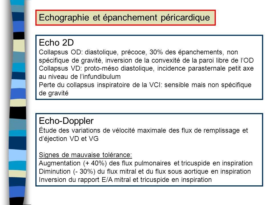Echographie et épanchement péricardique