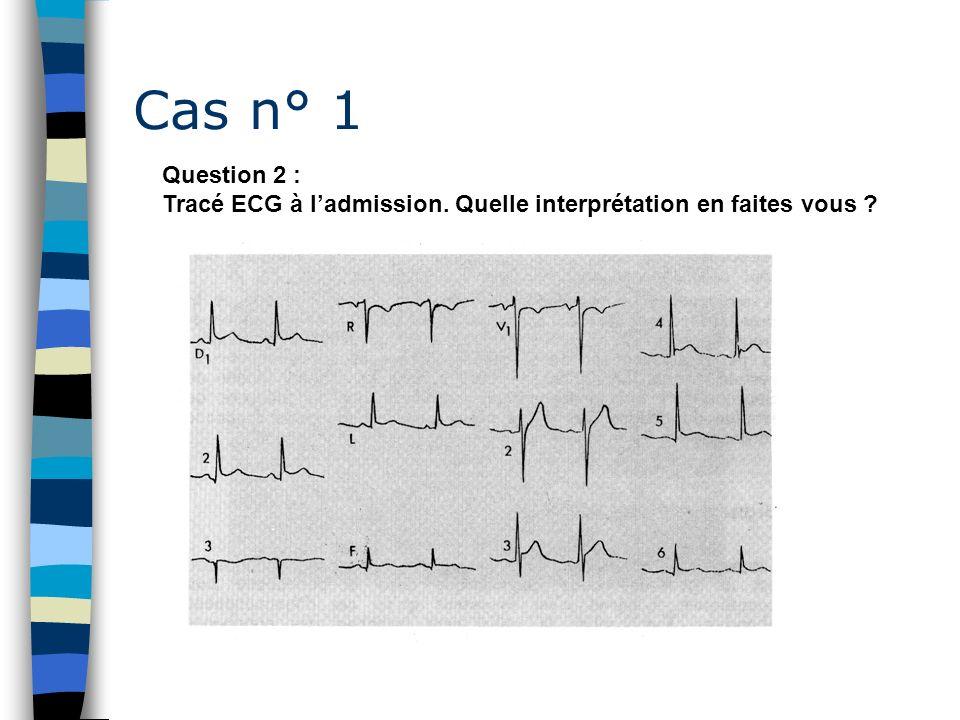 Cas n° 1 Question 2 : Tracé ECG à l'admission. Quelle interprétation en faites vous