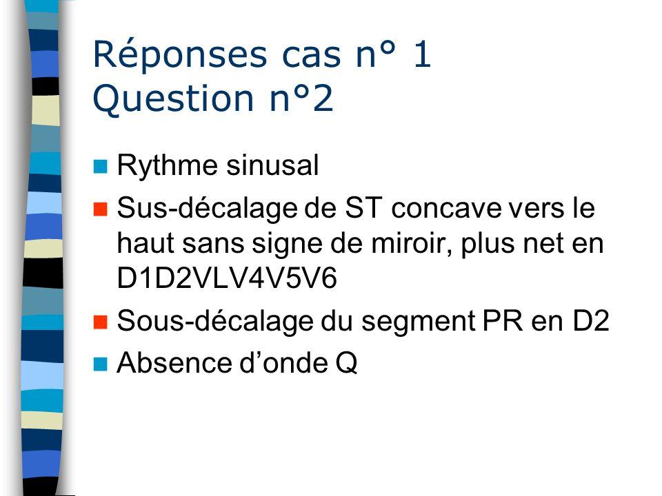 Réponses cas n° 1 Question n°2