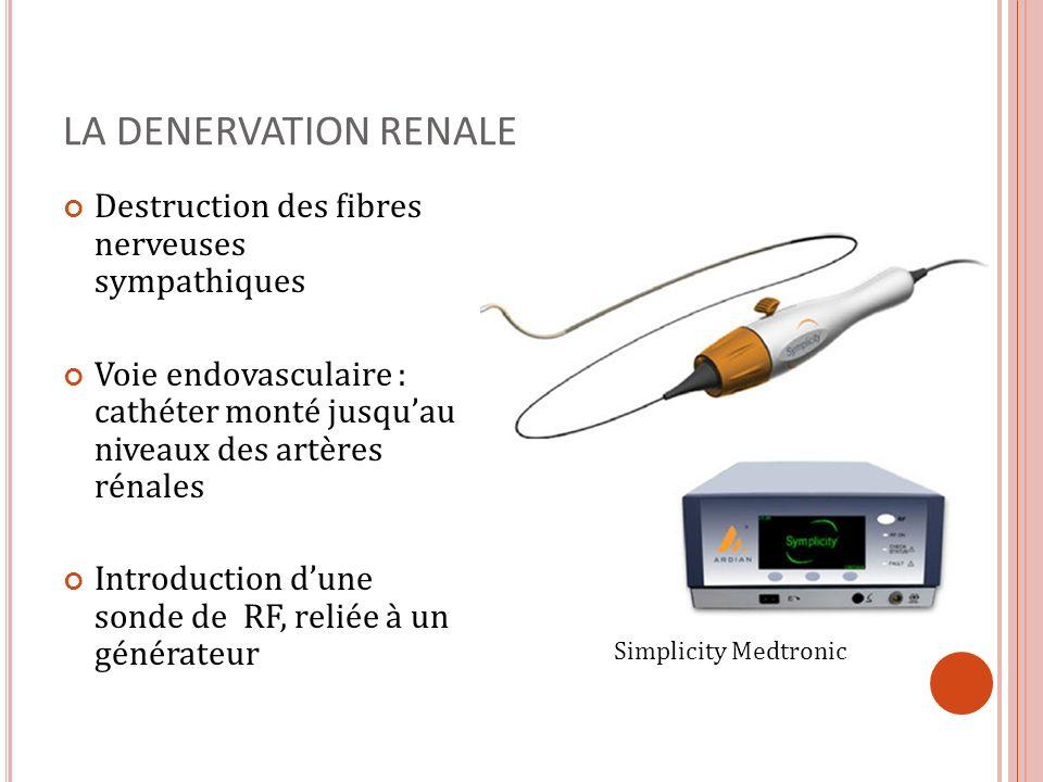 LA DENERVATION RENALE Destruction des fibres nerveuses sympathiques