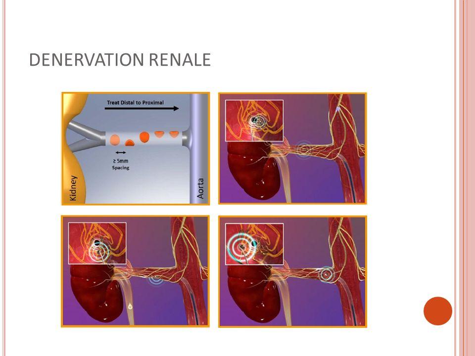DENERVATION RENALE