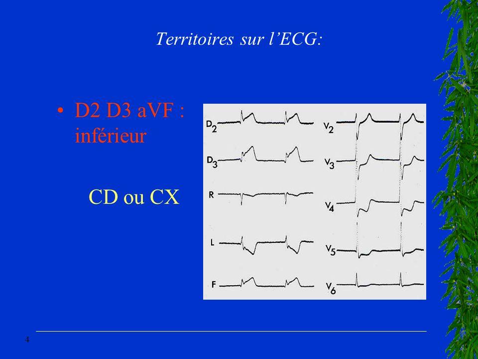 Territoires sur l'ECG: