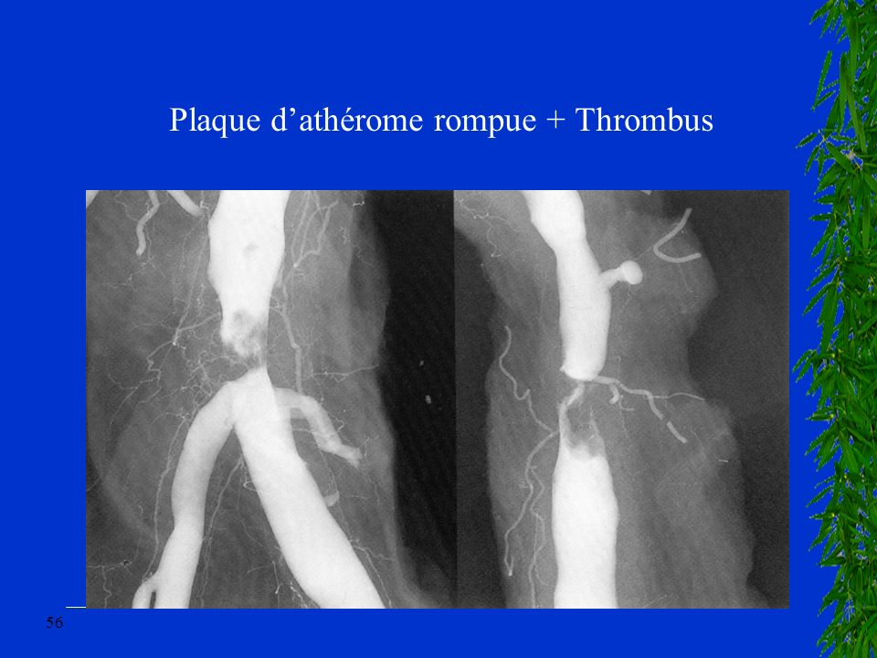 Plaque d'athérome rompue + Thrombus