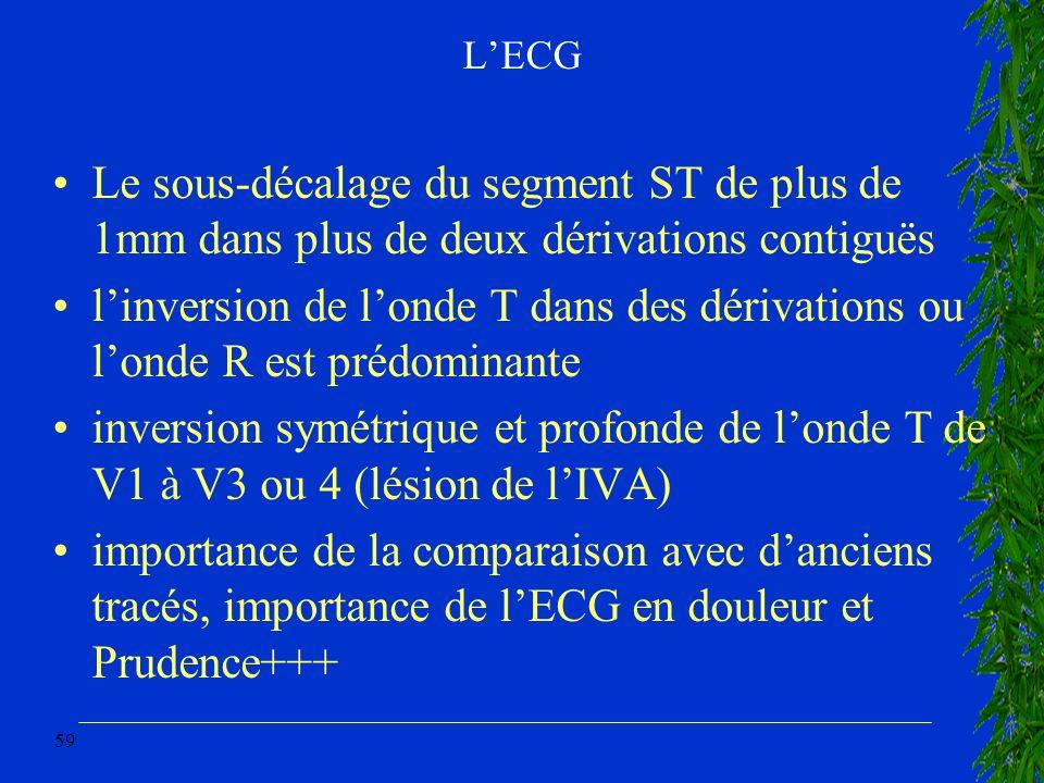 L'ECG Le sous-décalage du segment ST de plus de 1mm dans plus de deux dérivations contiguës.