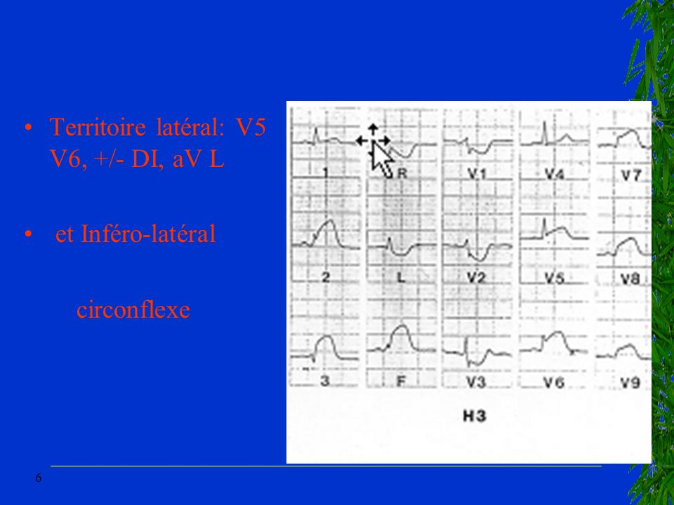 Territoire latéral: V5 V6, +/- DI, aV L