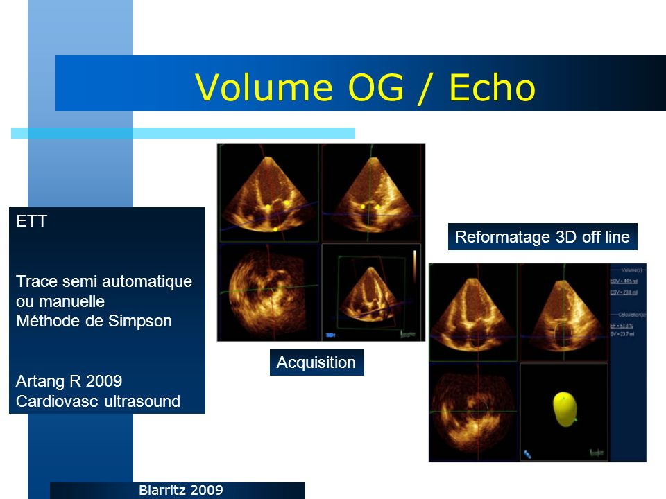 Volume OG / Echo ETT Reformatage 3D off line Trace semi automatique