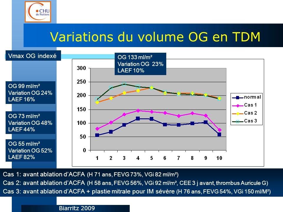 Variations du volume OG en TDM