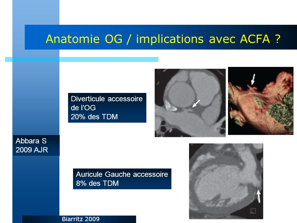 Anatomie OG / implications avec ACFA