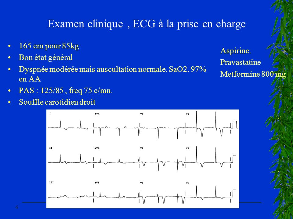 Examen clinique , ECG à la prise en charge