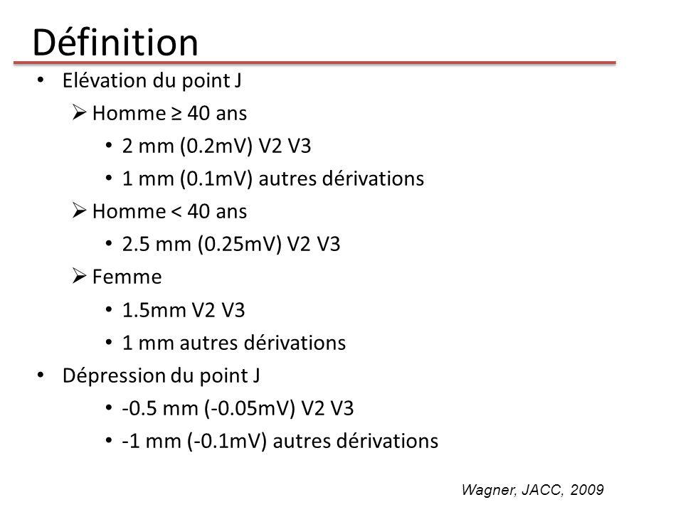 Définition Elévation du point J Homme ≥ 40 ans 2 mm (0.2mV) V2 V3