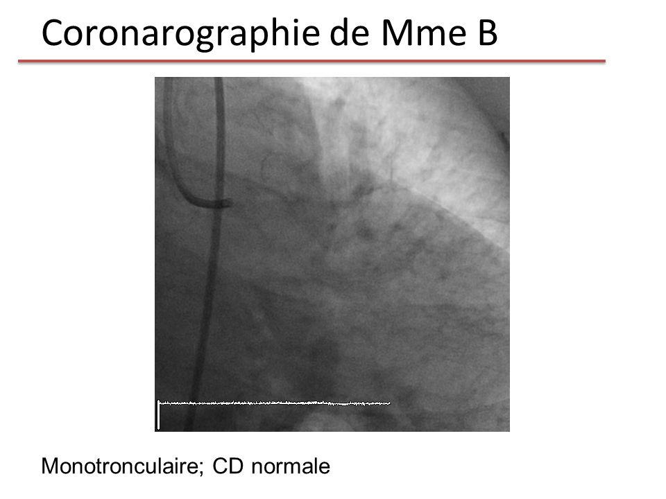 Coronarographie de Mme B