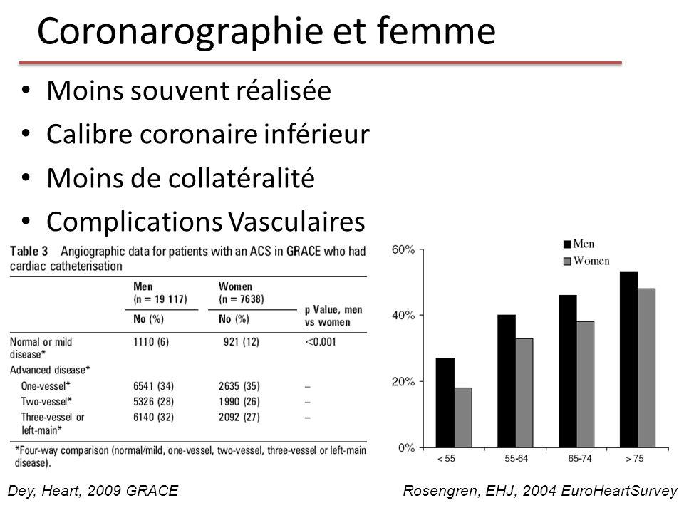 Coronarographie et femme