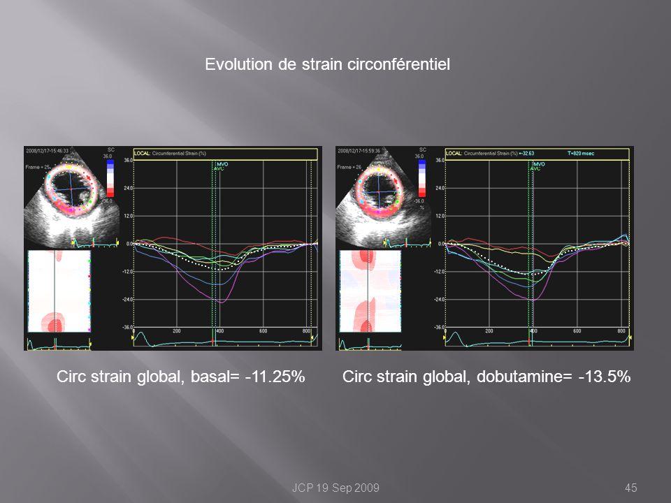 Evolution de strain circonférentiel