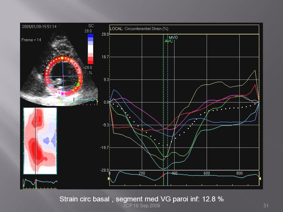 Strain circ basal , segment med VG paroi inf: 12.8 %