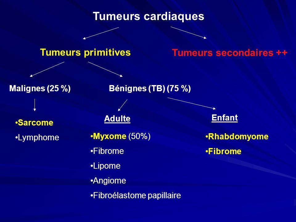 Tumeurs cardiaques Tumeurs primitives Tumeurs secondaires ++