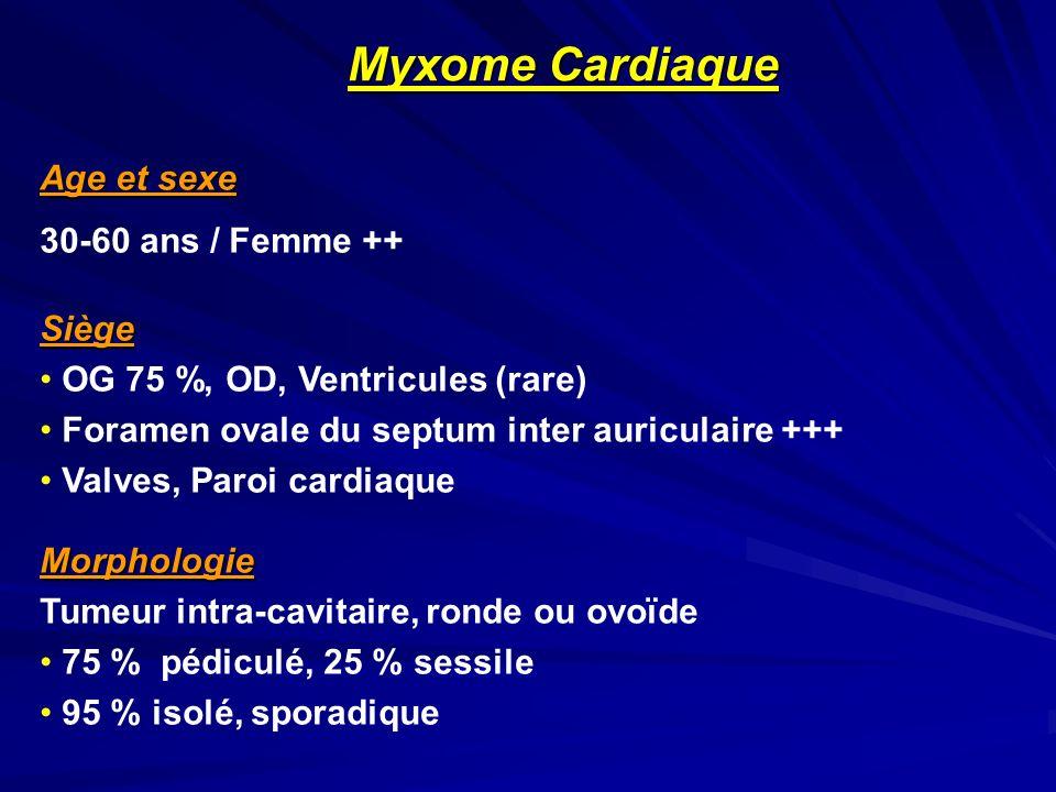 Myxome Cardiaque Age et sexe 30-60 ans / Femme ++ Siège