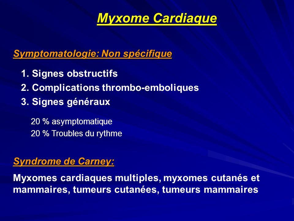 Myxome Cardiaque Symptomatologie: Non spécifique 1. Signes obstructifs