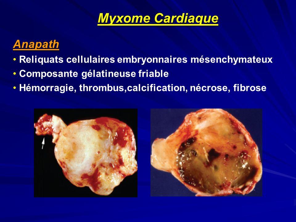 Myxome Cardiaque Anapath