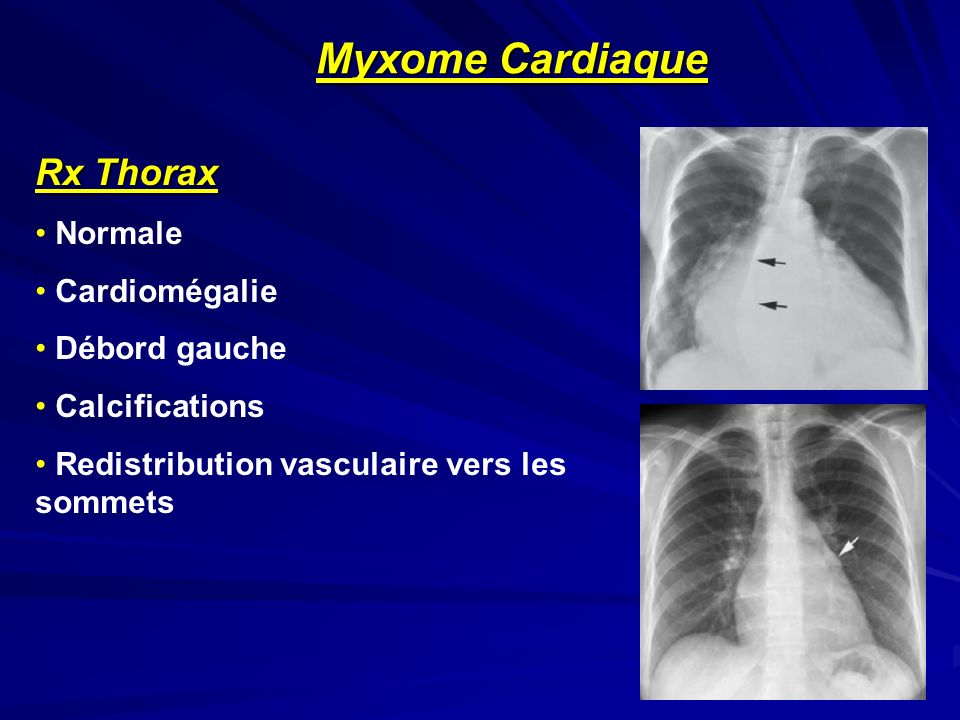 Myxome Cardiaque Rx Thorax Normale Cardiomégalie Débord gauche