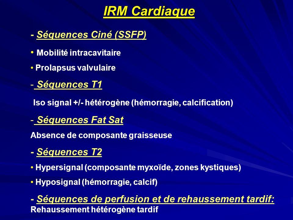 IRM Cardiaque - Séquences Ciné (SSFP) Mobilité intracavitaire