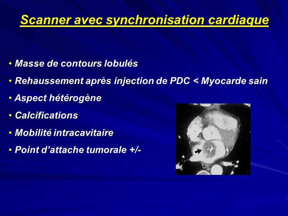 Scanner avec synchronisation cardiaque