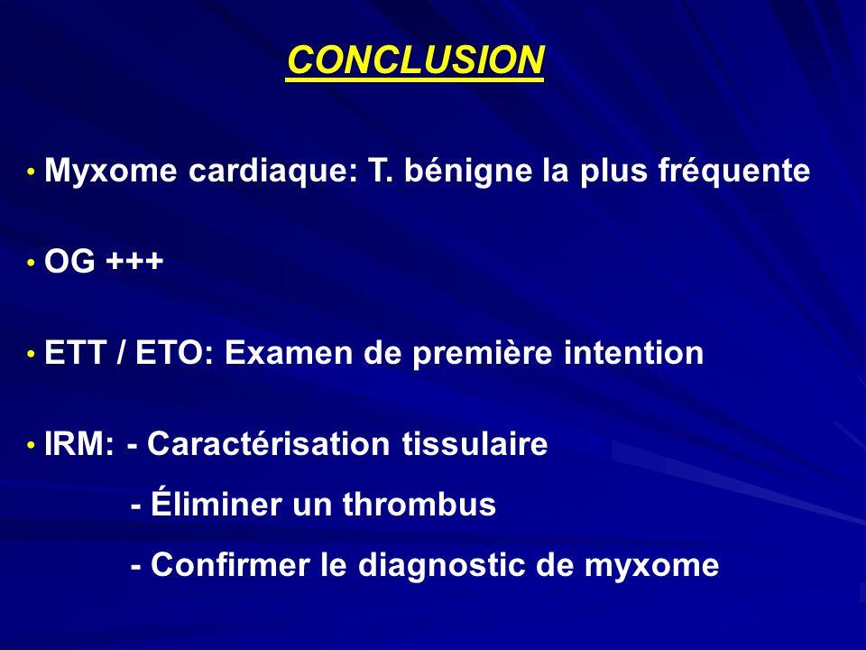 CONCLUSION Myxome cardiaque: T. bénigne la plus fréquente OG +++